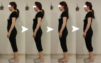 反り腰 脊柱管狭窄症 改善
