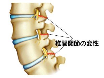 椎間関節の変性